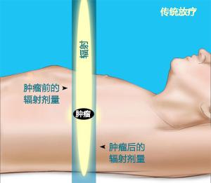 肿瘤前的辐射剂量.jpg