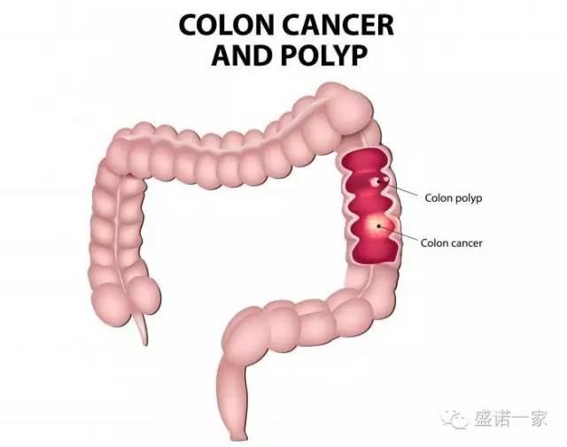 结直肠癌:新的联合治疗方案效果更好.jpg