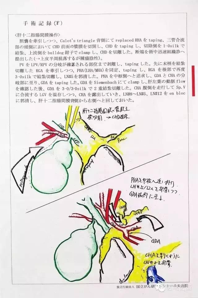 9.肝管-空肠吻合。 将空肠残端从横结肠系膜裂孔处提至肝下方,距空肠残端约15cm处切开空肠,置入5Fr导管从残端引出,5-0PDS缝线行肝管空肠吻合(后壁7针,前壁5针),4-0Vicryl Rapide缝线固定导管,导管内注入空气测试胆瘘(-)。 10.胰-胃吻合。 胃体下部后壁切开约4cm备吻合。胰腺残端找出胰管,插入5Fr胰管支架,用4-0Vicryl Rapide缝线固定。3-0ProleneTE缝线3针法行胰胃吻合。B超确认套入的胰腺残端及胰管支架在位。