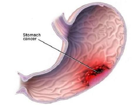 胃癌.jpg