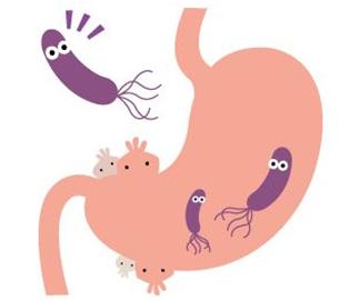 胃癌患者会出现哪些明显症状