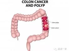 轩彩平台 结直肠癌:新的联合治疗方案