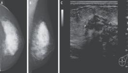 麻省总医院:内分泌治疗后乳腺癌复发转移一例