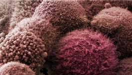 新型尿检诊断胰腺癌