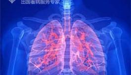 """赴美就医 科学家发现肺癌""""漏洞"""""""