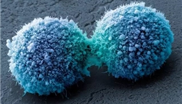 出国看病 麻省总医院研究发现胰腺癌潜在治疗靶点