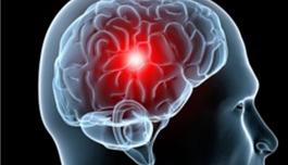 出国看病 立体定向放疗还是全脑放疗?肿瘤脑转移首个3期研究数据发布