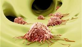 海外医疗 | JAMA子刊:晚期皮肤癌的免疫治疗