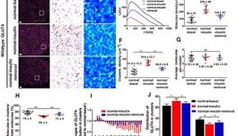 科学家在胰岛素抵抗调控GLUT4分布模式研究中取得进展