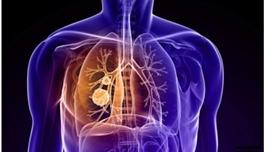 出国看病领略肺癌领域的新突破