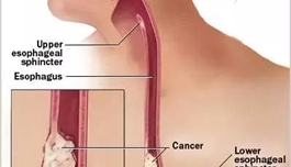 出国看病 分子亚型新发现,为食管癌治疗提供新方向
