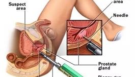 海外医疗 前列腺癌:术后健康与性功能真能兼得?