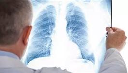 海外医疗 抗氧化剂:可以降低肺癌风险?