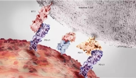 海外医疗 非小细胞肺癌指南更新:一经诊断就应做这些检测