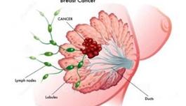 """海外医疗提示女性,不要小看""""副乳"""",很可能是乳腺癌、淋巴癌的前兆"""