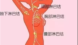 海外医疗 人体这3处淋巴,能够决定生死!一个手法教你自查