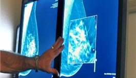 赴美就医 近 30 年来美国乳腺癌死亡率降低 40%,拯救 32.2 万条生命