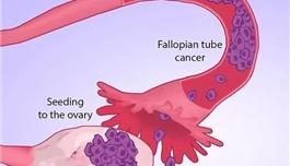 海外医疗 我们寻找卵巢癌的方向或许根本就错了