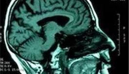 海外医疗 基因疗法有望治疗复发性脑癌