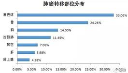 中国肺癌患者生存调查:更多人青睐的抗癌方案