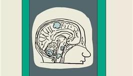 海外医疗 脑袋里长瘤是不是100%没救了?