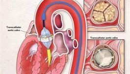 海外医疗 不用开胸,主动脉瓣狭窄的治疗新选择——TAVR
