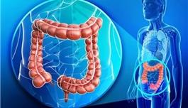 海外医疗 晚期结直肠癌真的不可以治愈吗?