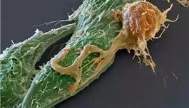 美图 | 海外医疗看免疫细胞大战癌细胞