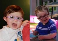 国外IA化疗成功帮助患儿保眼