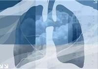 出国看病案例:肺癌患者去美国寻找希望,医院的诊...