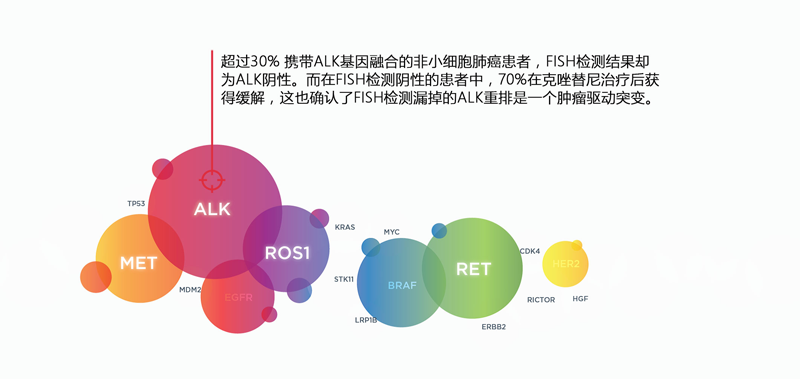 肺癌ALK融合基因-FISH阴性.png