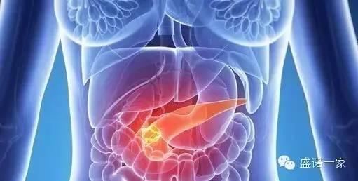 胰腺癌对关键蛋白的依赖可能会提供新的药物靶点