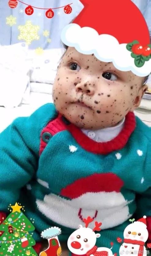 国内诊断活不过1岁、伊能静亲拍视频鼓励的怪病宝宝,从英国传来好消息….webp (4).jpg
