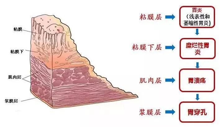 """被辣""""毁掉""""了的中国胃6.jpg"""