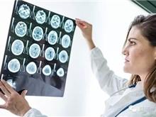 出国看病 DNA修复酶有望作为脑肿瘤药物