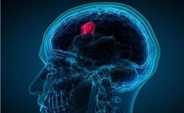 注意!这7大症状可能是脑瘤的早期征兆
