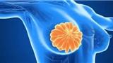 对话MD安德森专家:关于乳腺活检的8个问题