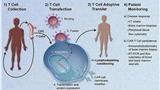 弥漫大B淋巴瘤复发用新疗法怎么样?