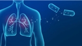 奥希替尼新试验结果出炉:降低79%早期肺癌复发或死亡风险