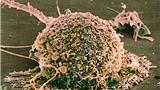 MSK斯隆:乳腺癌ER阳性患者耐药新发现