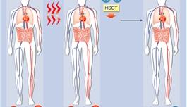 造血干细胞移植