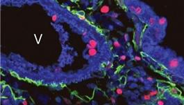 海外医疗 Nature:音猬因子的新角色或帮助理解肺部疾病的发生
