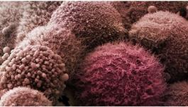 海外医疗治疗恶性淋巴瘤