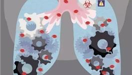 海外医疗  Keytruda可以延长难治性肺癌患者的生命