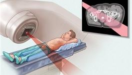 Cancer Research:放疗激活新途径 让前列腺癌治疗更有效