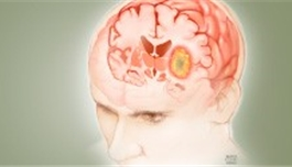 放疗后进行化疗可延长脑癌生存期