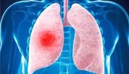 恶性肿瘤早期适合赴美就医吗?盛诺一家为患者分析
