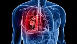 这项研究使转移性肺癌生存期延长3倍!