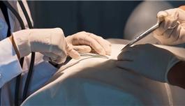 新药有望改变神经母细胞瘤治疗方案,临