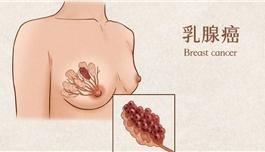 晚期乳腺癌研究重要进展:新三药联合疗